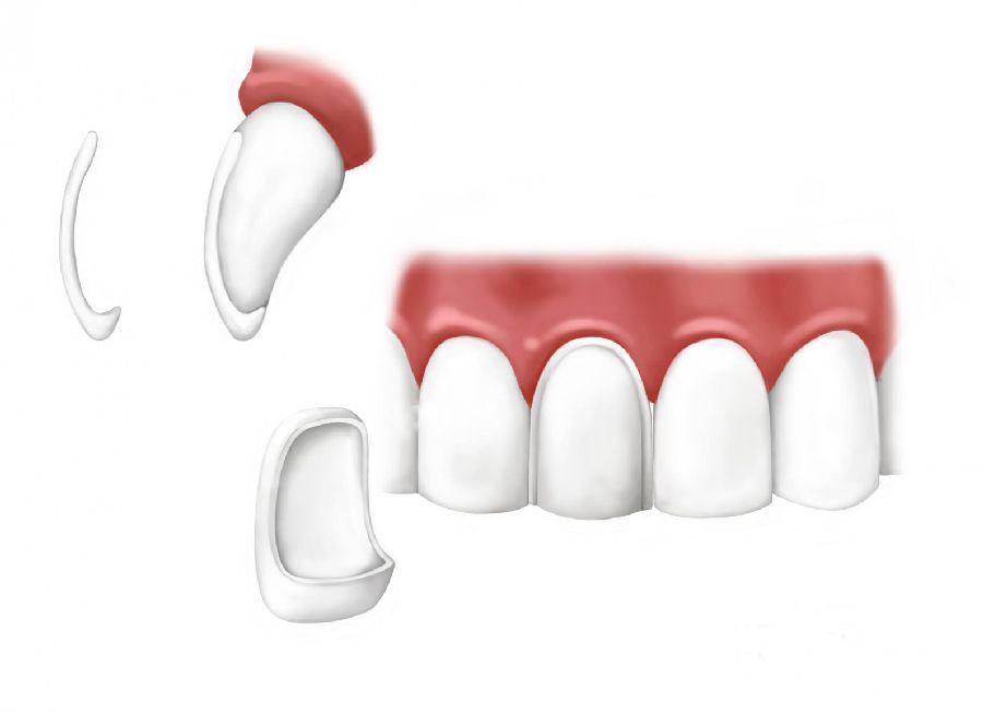 Tipos de carillas dentales que hay en el mercado