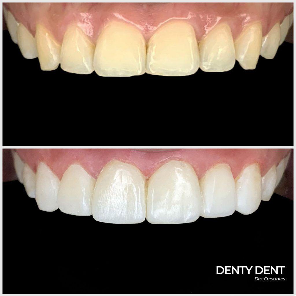 antes y después con las carillas de composite