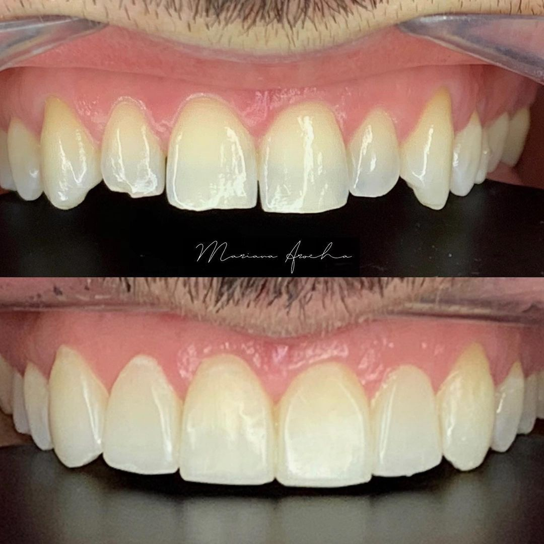 carillas de composite_sin tallado dental