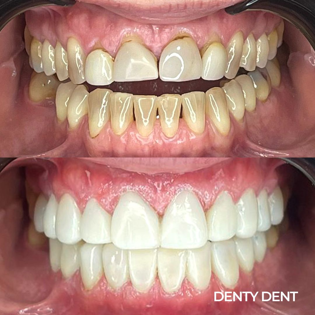 denty-dent-antes-despues-1